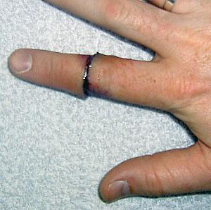Что делать если отрубил палец на руке